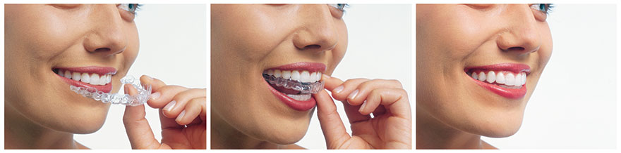 Woman inserting clear clear aligners aligners
